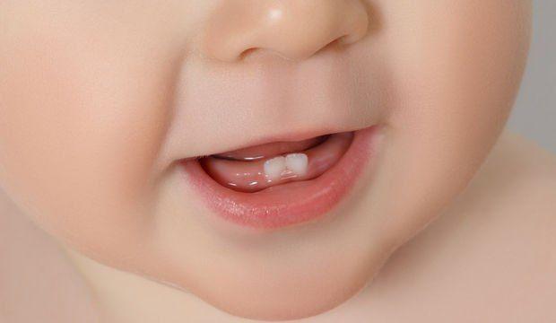 bebek diş çıkartma