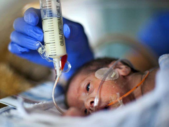 prematüre bebek beslenme