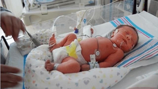 prematüre bebekler 2