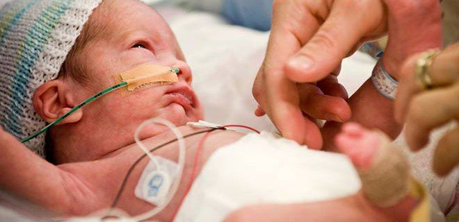 premature bebekler