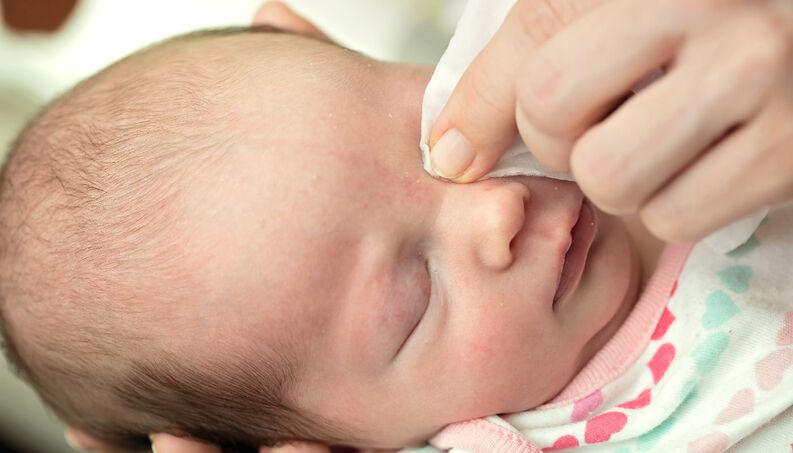 bebeklerde cilt bakımı